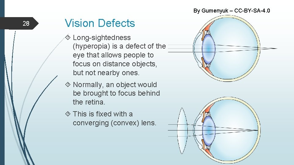 By Gumenyuk – CC-BY-SA-4. 0 28 Vision Defects Long-sightedness (hyperopia) is a defect of