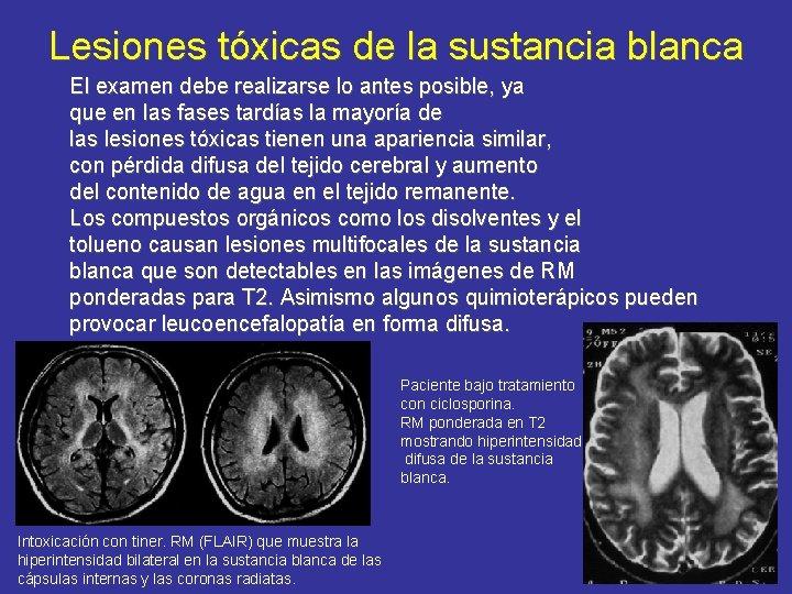 Lesiones tóxicas de la sustancia blanca El examen debe realizarse lo antes posible, ya