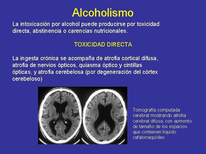Alcoholismo La intoxicación por alcohol puede producirse por toxicidad directa, abstinencia o carencias nutricionales.