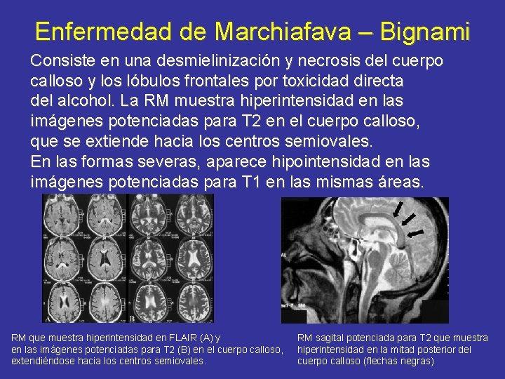 Enfermedad de Marchiafava – Bignami Consiste en una desmielinización y necrosis del cuerpo calloso