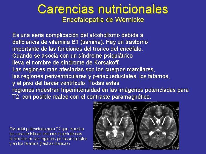 Carencias nutricionales Encefalopatía de Wernicke Es una seria complicación del alcoholismo debida a deficiencia