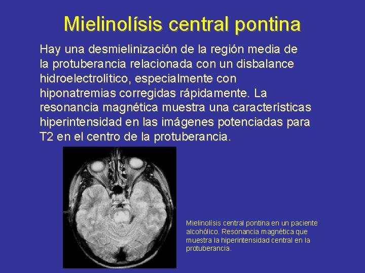 Mielinolísis central pontina Hay una desmielinización de la región media de la protuberancia relacionada