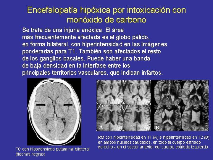 Encefalopatía hipóxica por intoxicación con monóxido de carbono Se trata de una injuria anóxica.