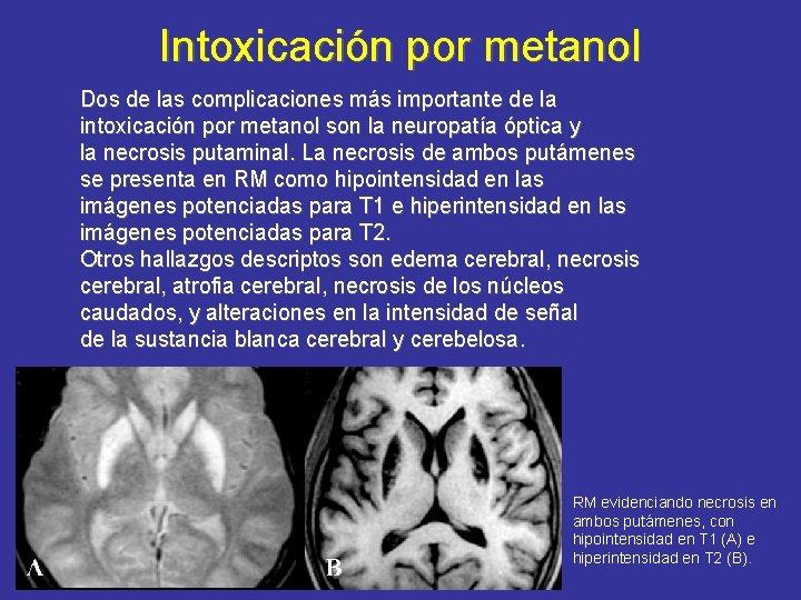 Intoxicación por metanol Dos de las complicaciones más importante de la intoxicación por metanol
