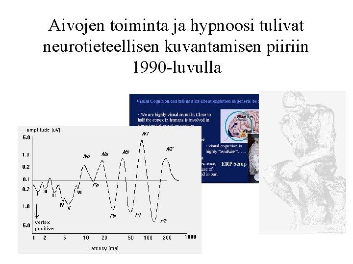 Aivojen toiminta ja hypnoosi tulivat neurotieteellisen kuvantamisen piiriin 1990 -luvulla