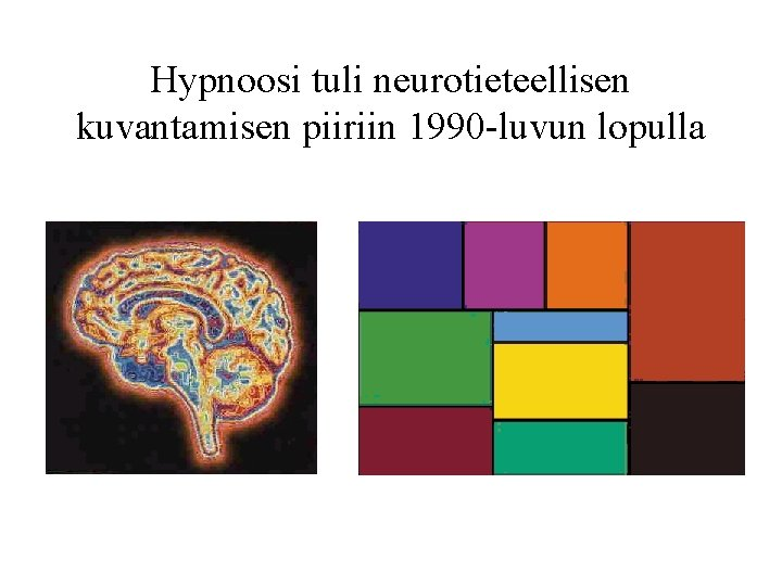 Hypnoosi tuli neurotieteellisen kuvantamisen piiriin 1990 -luvun lopulla