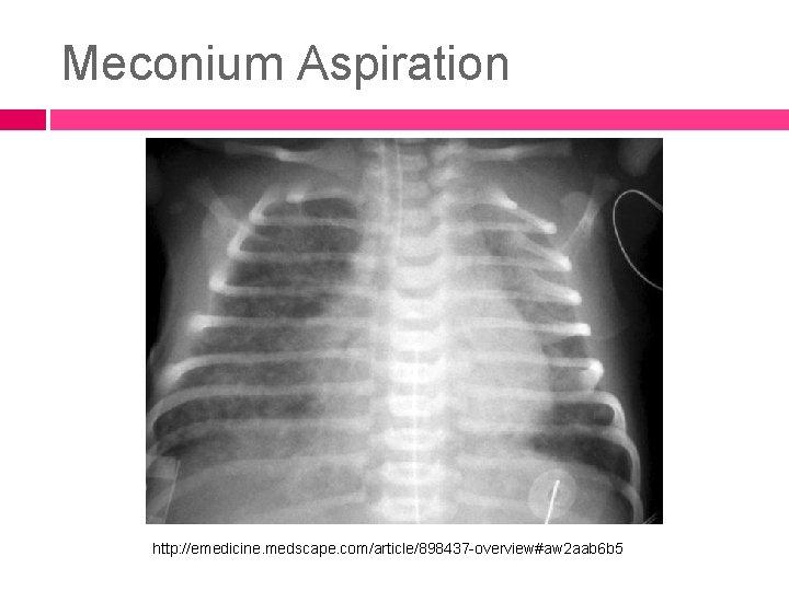Meconium Aspiration http: //emedicine. medscape. com/article/898437 -overview#aw 2 aab 6 b 5
