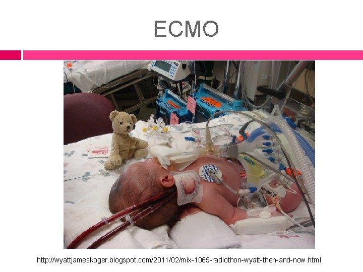 ECMO http: //wyattjameskoger. blogspot. com/2011/02/mix-1065 -radiothon-wyatt-then-and-now. html