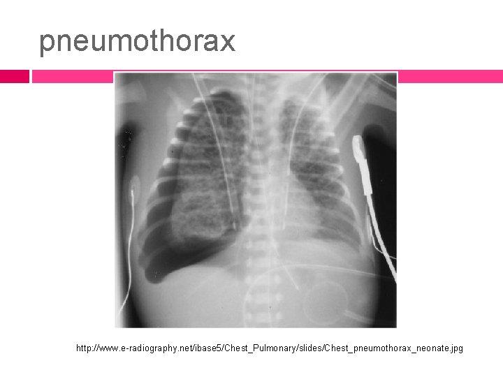 pneumothorax http: //www. e-radiography. net/ibase 5/Chest_Pulmonary/slides/Chest_pneumothorax_neonate. jpg