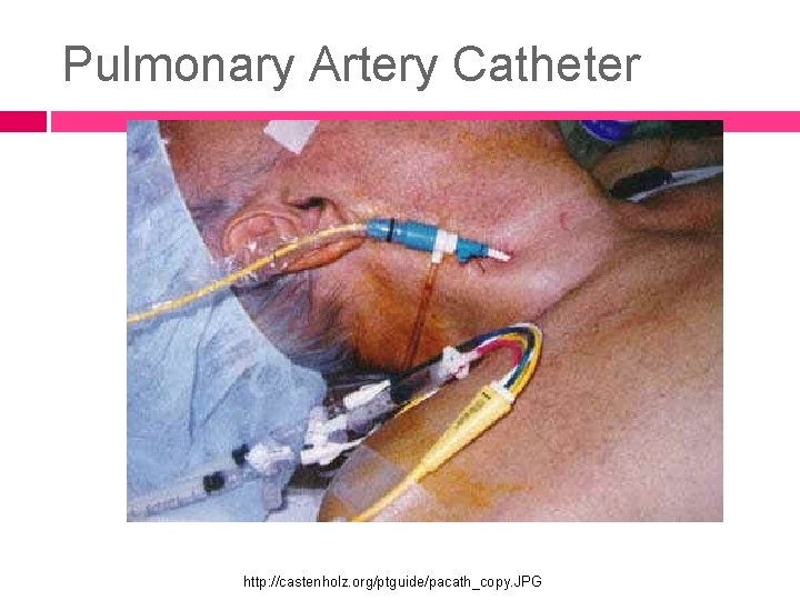 Pulmonary Artery Catheter http: //castenholz. org/ptguide/pacath_copy. JPG