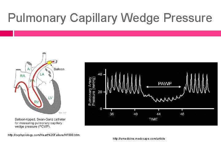 Pulmonary Capillary Wedge Pressure http: //cvphysiology. com/Heart%20 Failure/HF 008. htm http: //emedicine. medscape. com/article