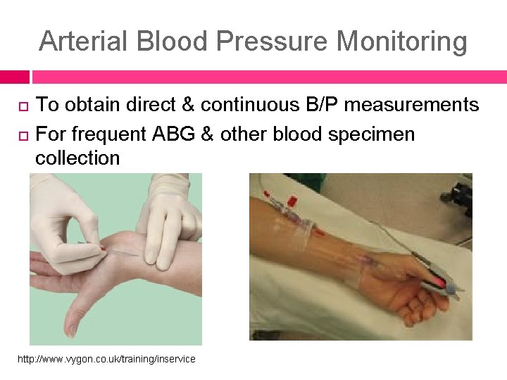 Arterial Blood Pressure Monitoring To obtain direct & continuous B/P measurements For frequent ABG
