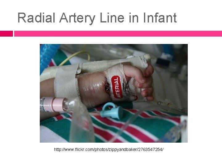 Radial Artery Line in Infant http: //www. flickr. com/photos/zippyandbaker/2763547254/