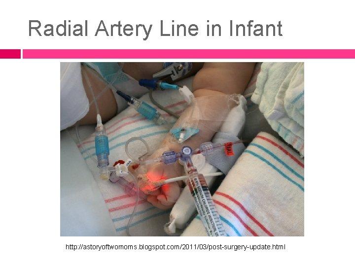 Radial Artery Line in Infant http: //astoryoftwomoms. blogspot. com/2011/03/post-surgery-update. html