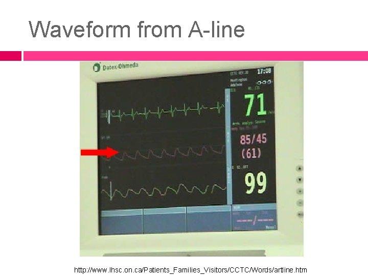 Waveform from A-line http: //www. lhsc. on. ca/Patients_Families_Visitors/CCTC/Words/artline. htm