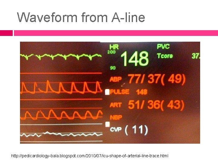 Waveform from A-line http: //pedicardiology-bala. blogspot. com/2010/07/icu-shape-of-arterial-line-trace. html