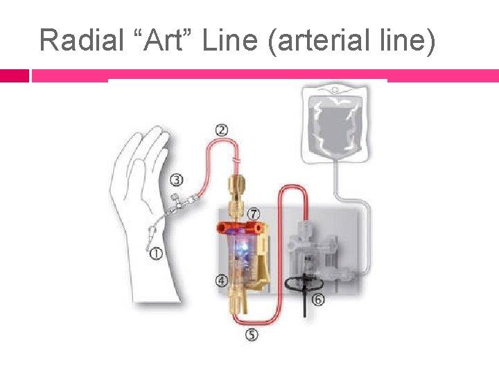 """Radial """"Art"""" Line (arterial line)"""