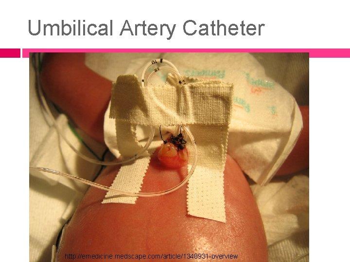Umbilical Artery Catheter http: //emedicine. medscape. com/article/1348931 -overview