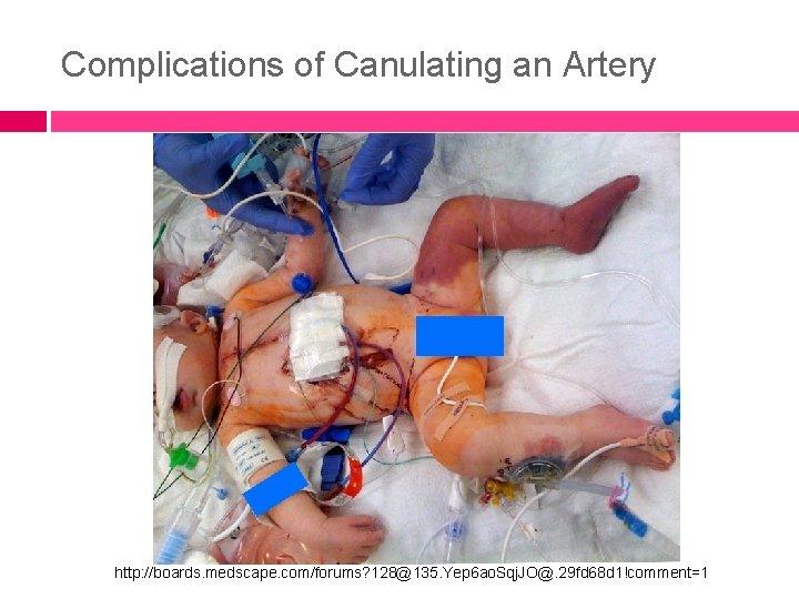 Complications of Canulating an Artery http: //boards. medscape. com/forums? 128@135. Yep 6 ao. Sqj.