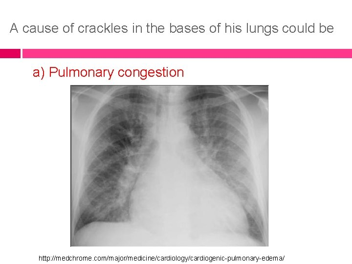 A cause of crackles in the bases of his lungs could be a) Pulmonary