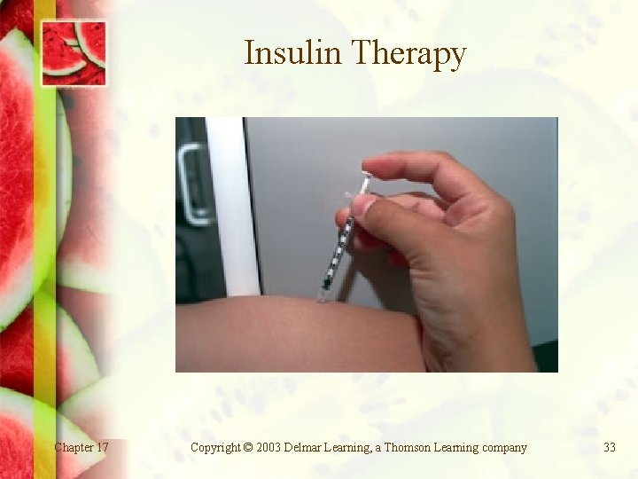 Insulin Therapy Chapter 17 Copyright © 2003 Delmar Learning, a Thomson Learning company 33
