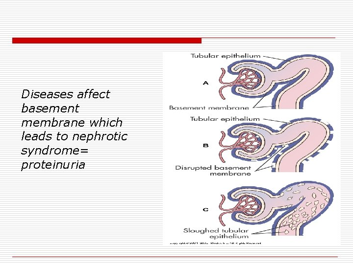 Diseases affect basement membrane which leads to nephrotic syndrome= proteinuria