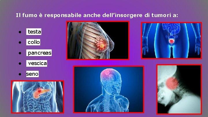 Il fumo è responsabile anche dell'insorgere di tumori a: ● testa ● collo ●
