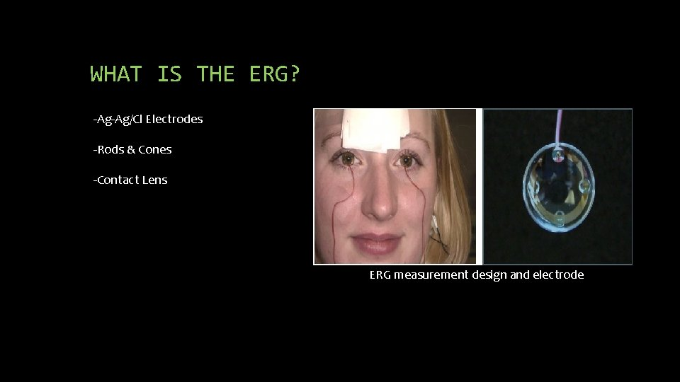 WHAT IS THE ERG? -Ag-Ag/Cl Electrodes -Rods & Cones -Contact Lens ERG measurement design