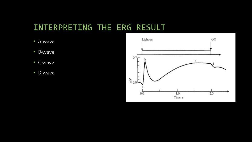 INTERPRETING THE ERG RESULT • A-wave • B-wave • C-wave • D-wave