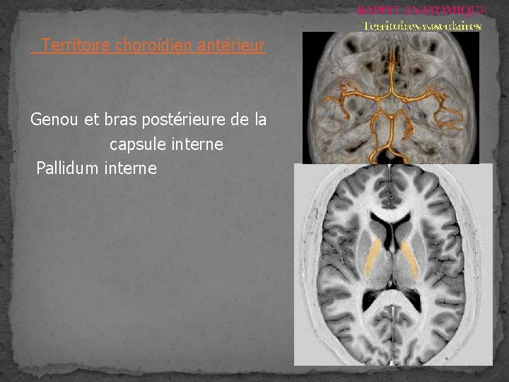 RAPPEL ANATOMIQUE Territoires vasculaires Territoire choroïdien antérieur Genou et bras postérieure de la capsule