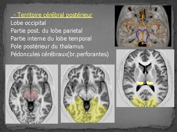 - Territoire cérébral postérieur Lobe occipital Partie post. du lobe parietal Partie interne du