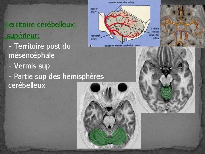 -Territoire cérébelleux: supérieur: - Territoire post du mésencéphale - Vermis sup - Partie sup