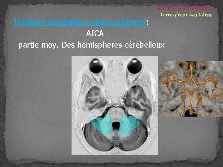 RAPPEL ANATOMIQUE Territoires vasculaires Territoire cérébelleux inféro antérieur: AICA partie moy. Des hémisphères cérébelleux