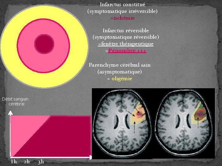 Infarctus constitué (symptomatique irréversible) =ischémie Infarctus réversible (symptomatique réversible) =fenêtre thérapeutique =Pénombre +++ Parenchyme