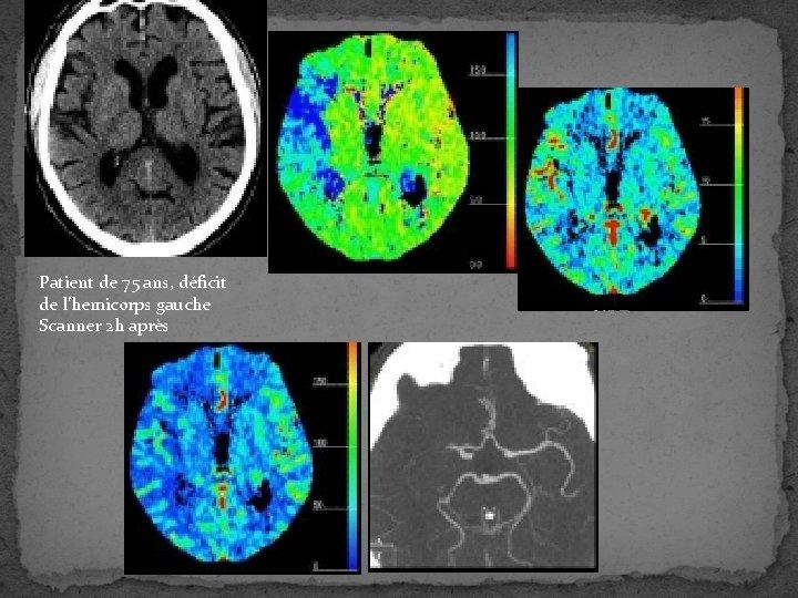 Patient de 75 ans, déficit de l'hemicorps gauche Scanner 2 h après