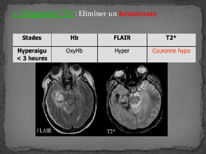 1 - Séquence T 2*: Eliminer un hématome