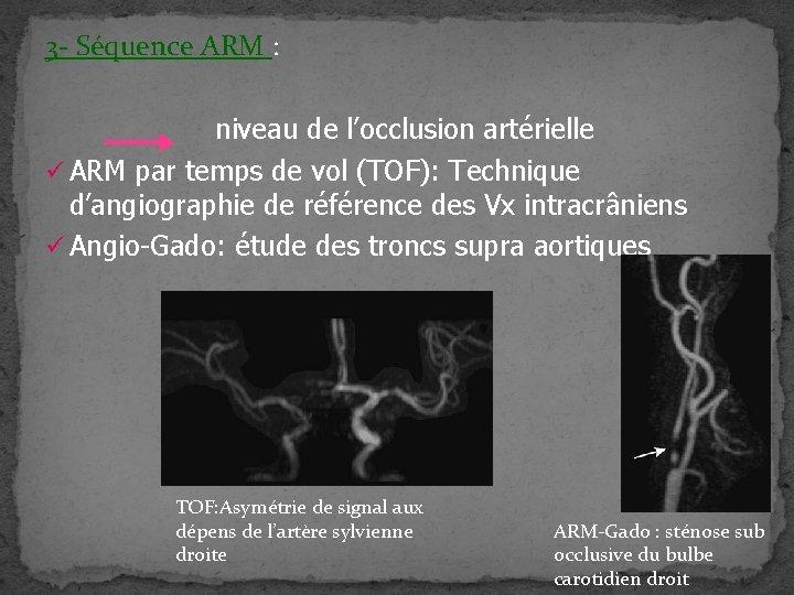 3 - Séquence ARM : niveau de l'occlusion artérielle ü ARM par temps de