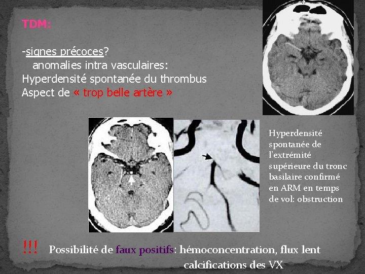 TDM: -signes précoces? anomalies intra vasculaires: Hyperdensité spontanée du thrombus Aspect de « trop