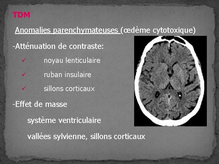 TDM Anomalies parenchymateuses (œdème cytotoxique) -Atténuation de contraste: ü noyau lenticulaire ü ruban insulaire