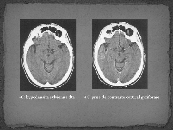 -C: hypodensité sylvienne dte +C: prise de contraste cortical gyriforme