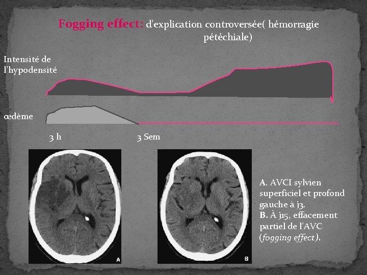 Fogging effect: d'explication controversée( hémorragie pétéchiale) Intensité de l'hypodensité œdème 3 h 3 Sem