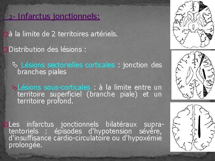 2 - Infarctus jonctionnels: � à la limite de 2 territoires artériels. � Distribution