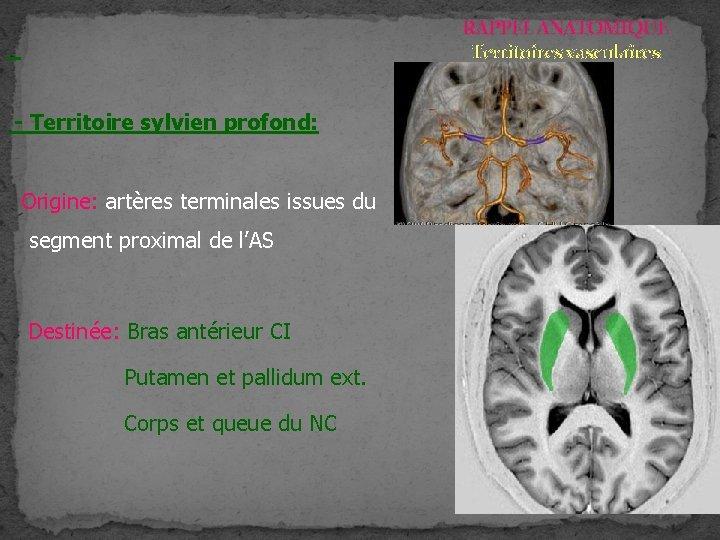 RAPPEL ANATOMIQUE Territoires vasculaires - Territoire sylvien profond: Origine: artères terminales issues du segment