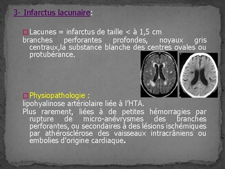 3 - Infarctus lacunaire: � Lacunes = infarctus de taille < à 1, 5