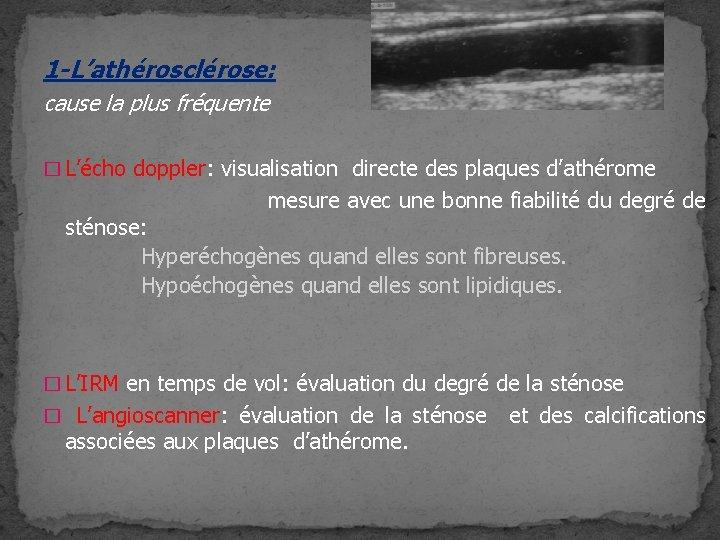 1 -L'athérosclérose: cause la plus fréquente � L'écho doppler: visualisation directe des plaques d'athérome
