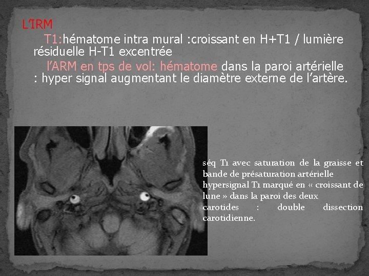 L'IRM T 1: hématome intra mural : croissant en H+T 1 / lumière résiduelle