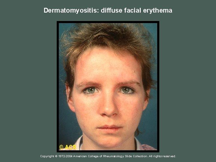 Dermatomyositis: diffuse facial erythema Copyright © 1972 -2004 American College of Rheumatology Slide Collection.