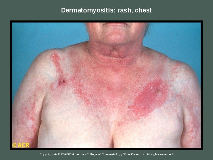 Dermatomyositis: rash, chest Copyright © 1972 -2004 American College of Rheumatology Slide Collection. All