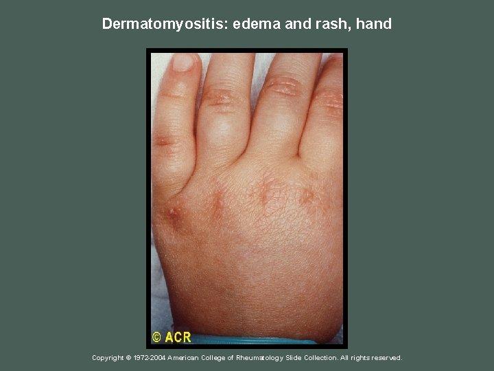 Dermatomyositis: edema and rash, hand Copyright © 1972 -2004 American College of Rheumatology Slide