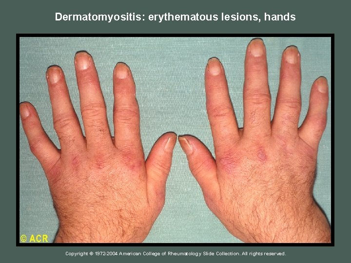 Dermatomyositis: erythematous lesions, hands Copyright © 1972 -2004 American College of Rheumatology Slide Collection.